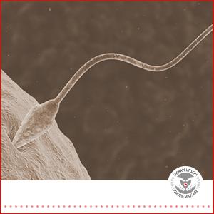 Spermientuning mit TFM